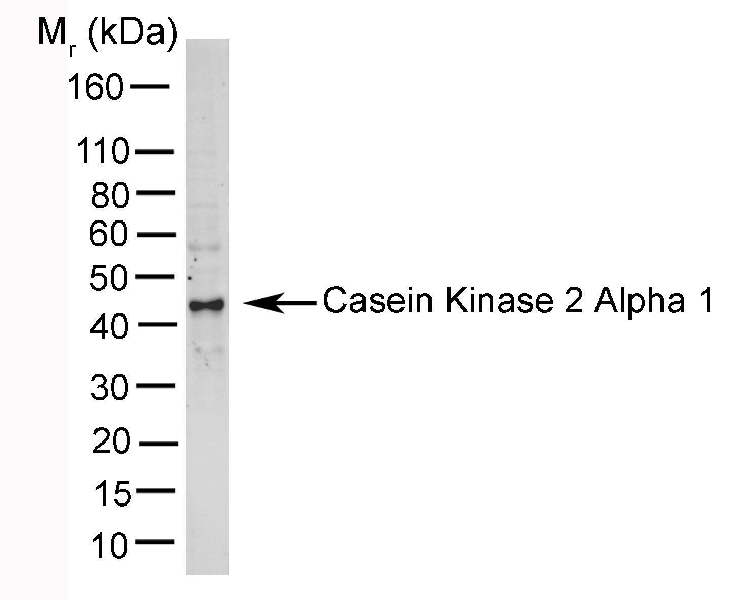 Anti Casein Kinase 2 Alpha 1 Antibody, clone AbD05928 thumbnail image 1