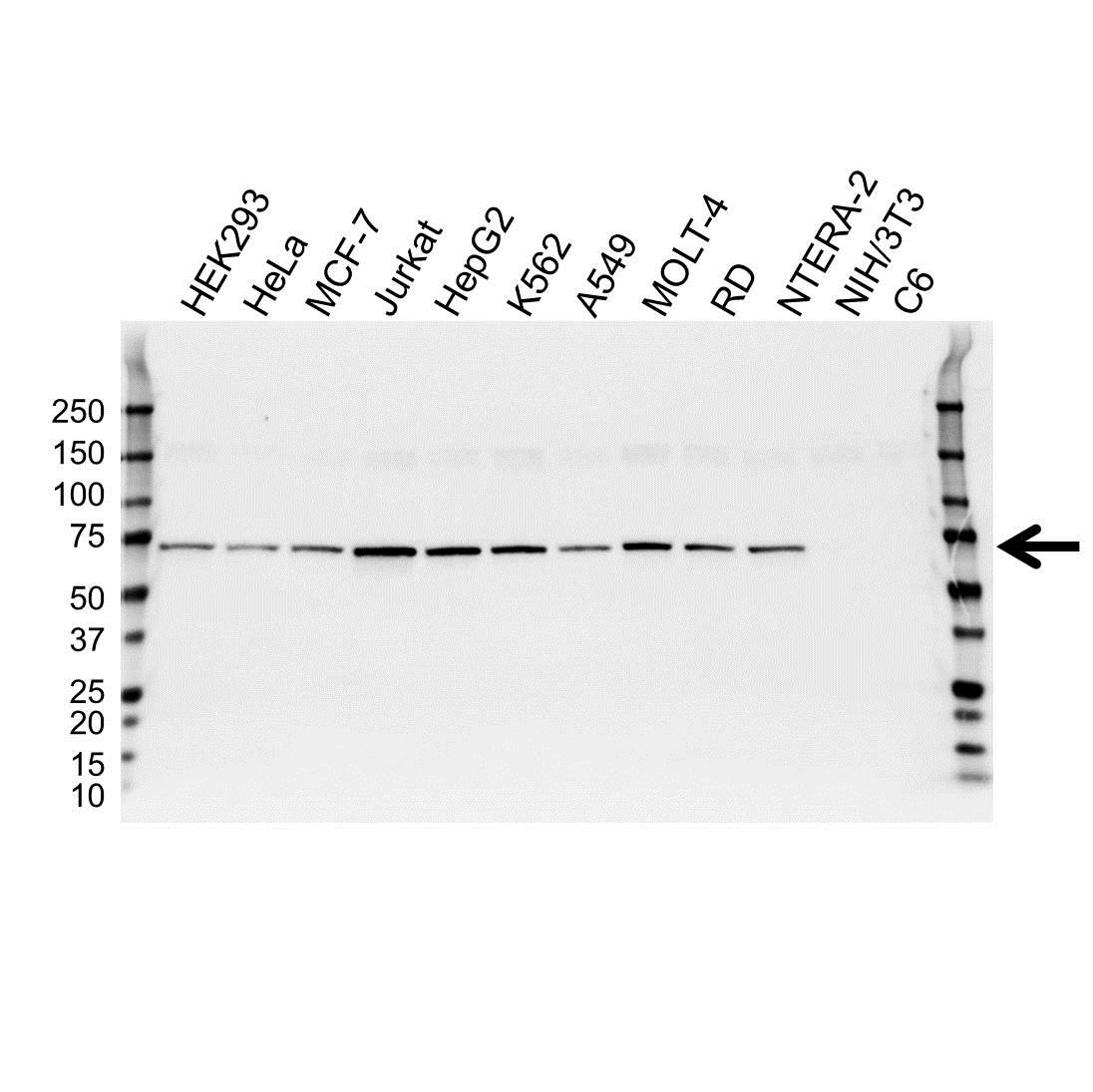 Anti Catenin Beta-Like Protein 1 Antibody (PrecisionAb™ Monoclonal Antibody) gallery image 1