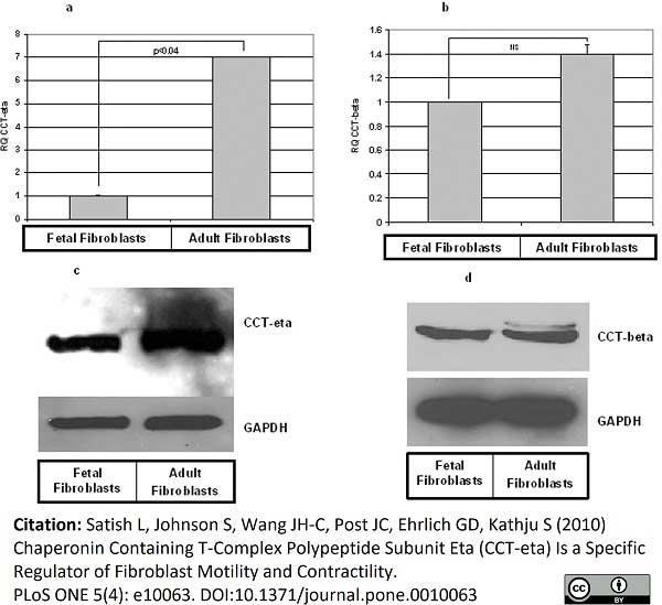 Anti CCT Beta Antibody, clone PK/8/4/4i/2F (PrecisionAb Monoclonal Antibody) thumbnail image 3