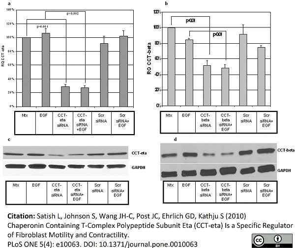 Anti CCT Beta Antibody, clone PK/8/4/4i/2F (PrecisionAb Monoclonal Antibody) thumbnail image 4