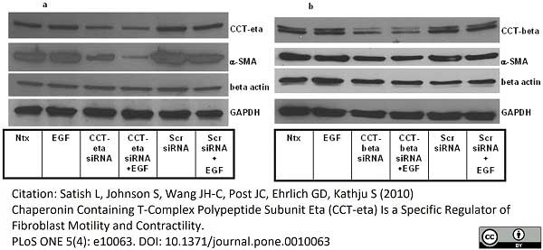 Anti CCT Beta Antibody, clone PK/8/4/4i/2F (PrecisionAb Monoclonal Antibody) thumbnail image 5