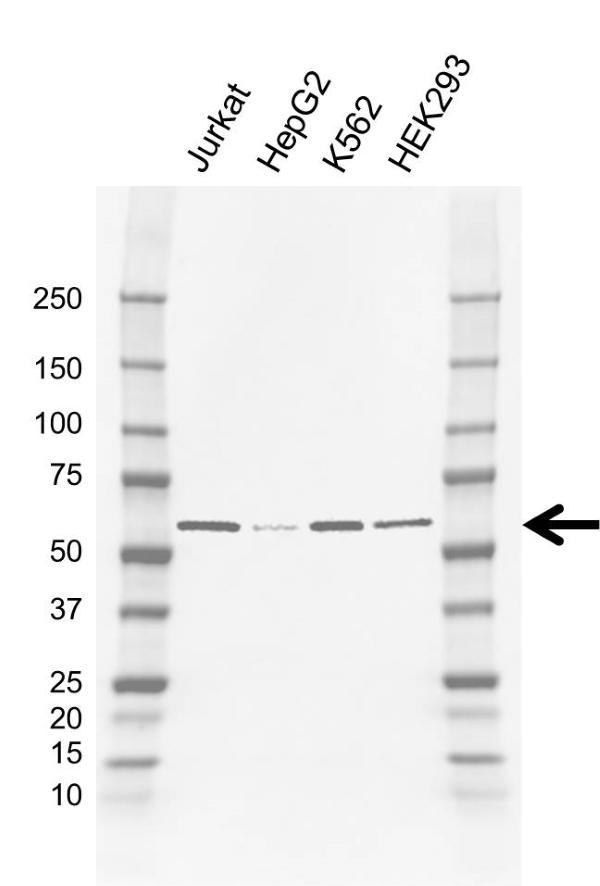 Anti CCT eta Antibody, clone AB01/2D1 (PrecisionAb Monoclonal Antibody) gallery image 1