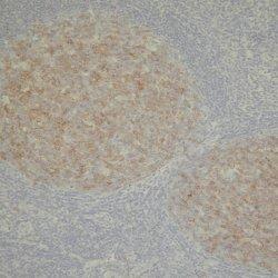 Anti Human CD10 Antibody, clone 56C6 gallery image 1