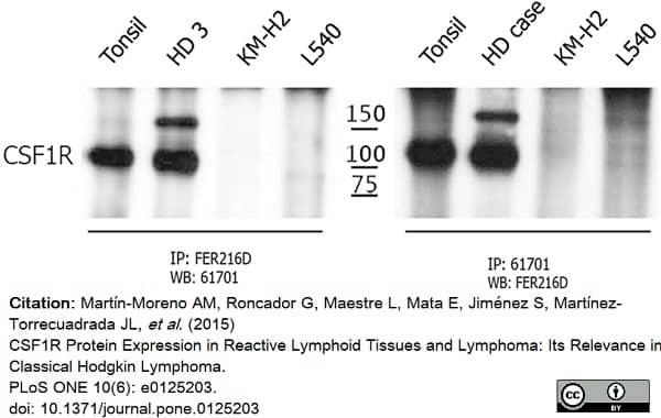 Anti Human CD115/CSF1R Antibody, clone FER216 thumbnail image 5