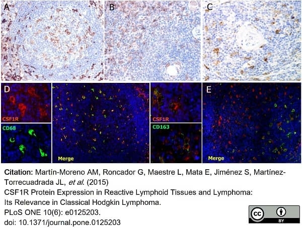 Anti Human CD115/CSF1R Antibody, clone FER216 thumbnail image 6