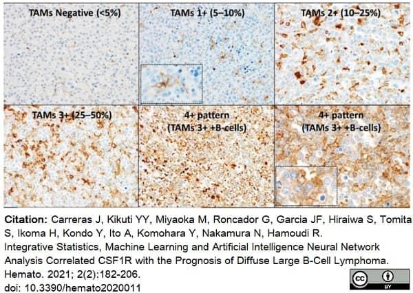 Anti Human CD115/CSF1R Antibody, clone FER216 thumbnail image 9