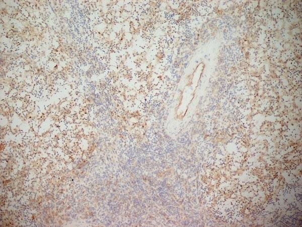 CD141 Antibody|QBEND/40|MCA641