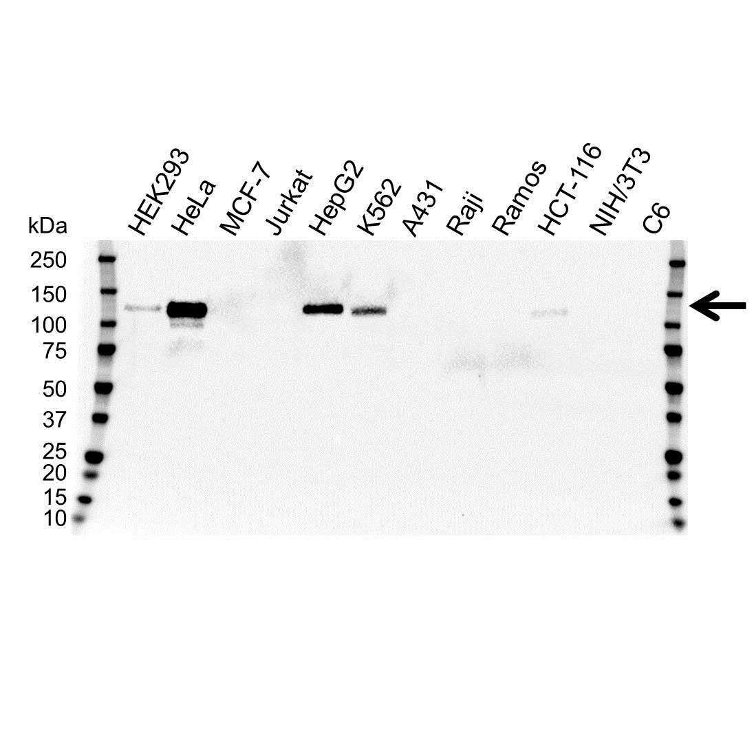 Anti CD146 Antibody, clone OTI2G10 (PrecisionAb™ Monoclonal Antibody) gallery image 1