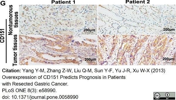Anti Human CD151 Antibody, clone 11G5a thumbnail image 10