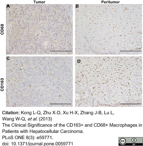 Anti Human CD163 Antibody, clone EDHu-1 thumbnail image 22