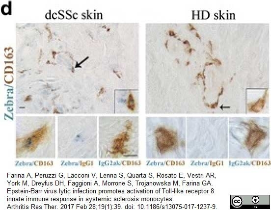 Anti Human CD163 Antibody, clone EDHu-1 thumbnail image 23