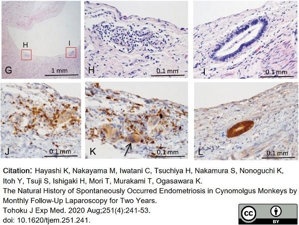 Anti Human CD163 Antibody, clone EDHu-1 thumbnail image 24
