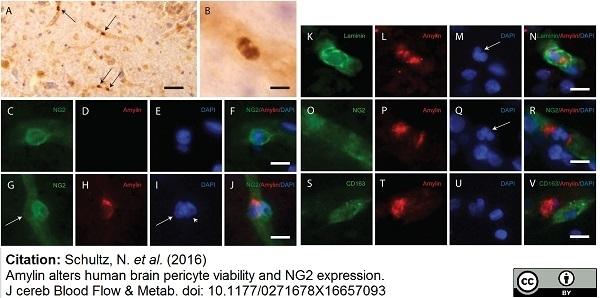 Anti Human CD163 Antibody, clone EDHu-1 thumbnail image 4