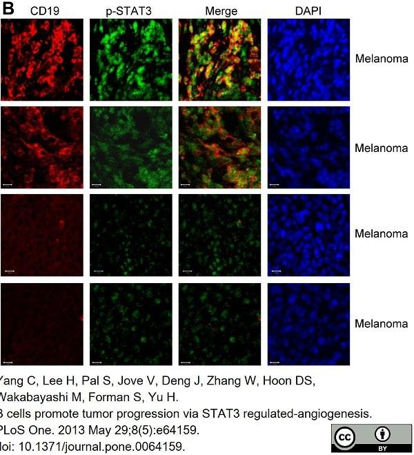 Anti Human CD19 Antibody, clone LT19 thumbnail image 16