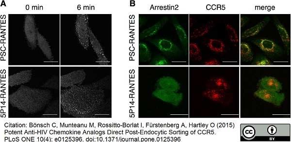 Anti Human CD195 Antibody, clone HEK/1/85a thumbnail image 2