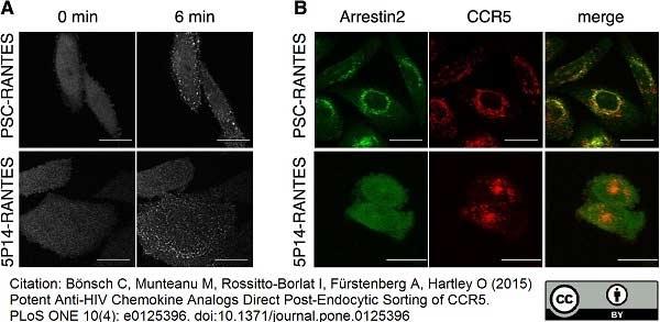 Anti Human CD195 Antibody, clone HEK/1/85a thumbnail image 3