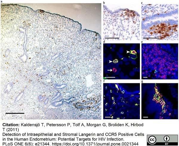 Anti Human CD1a Antibody, clone NA1/34-HLK thumbnail image 13