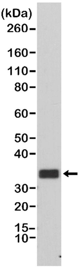 Anti CD20 Antibody, clone RM272 thumbnail image 1