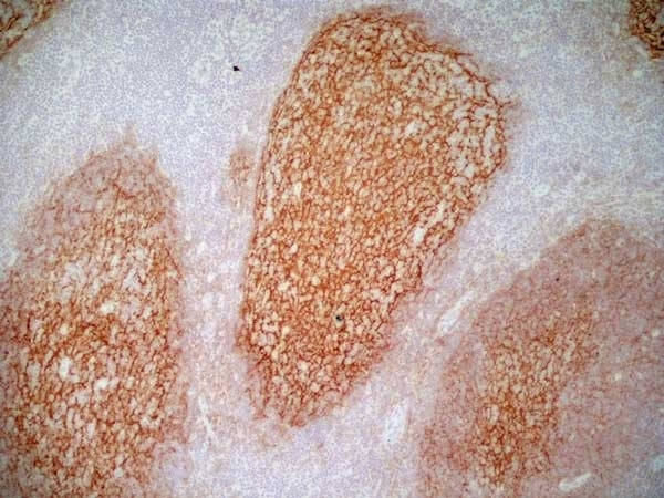 Anti Human CD21 Antibody, clone LB21 thumbnail image 6