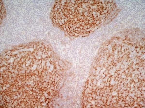 Anti Human CD21 Antibody, clone LB21 thumbnail image 7