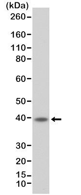 Anti CD23 Antibody, clone RM406 thumbnail image 1