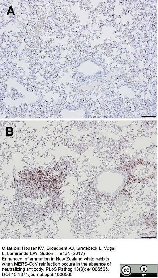 Anti Human CD3 Antibody, clone CD3-12 thumbnail image 24