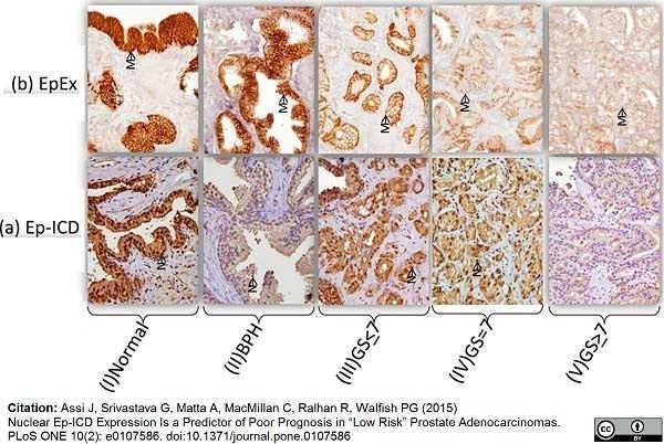 Anti Human CD326 Antibody, clone MOC-31 thumbnail image 1