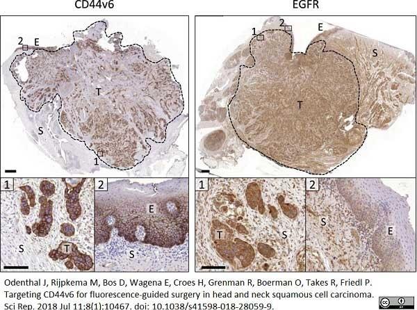 Anti Human CD44v6 Antibody, clone VFF-18 gallery image 1