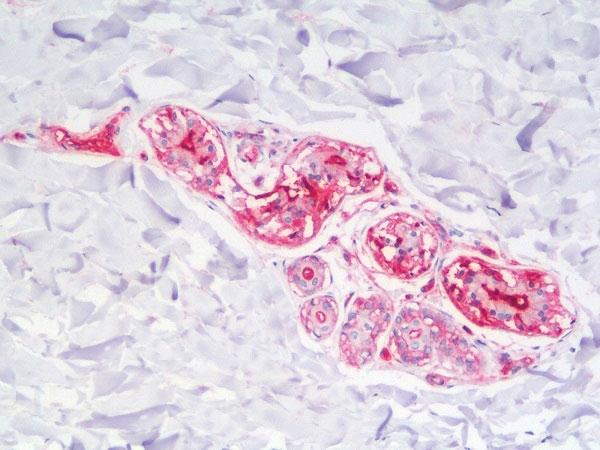 Anti Human CD59 Antibody, clone MEM-43 thumbnail image 4