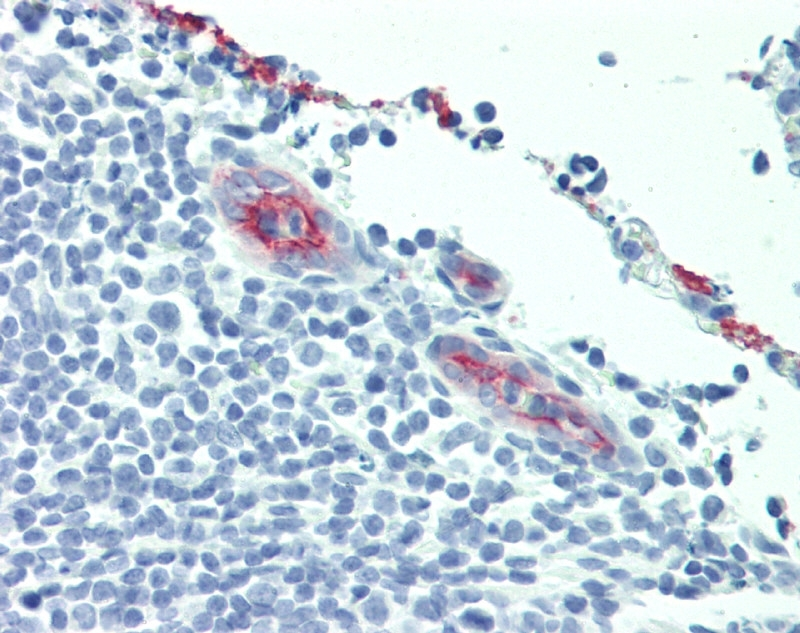 Anti Human CD62P Antibody, clone AK-6 thumbnail image 3