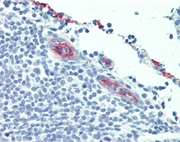 Anti Human CD62P Antibody, clone AK-6 thumbnail image 4