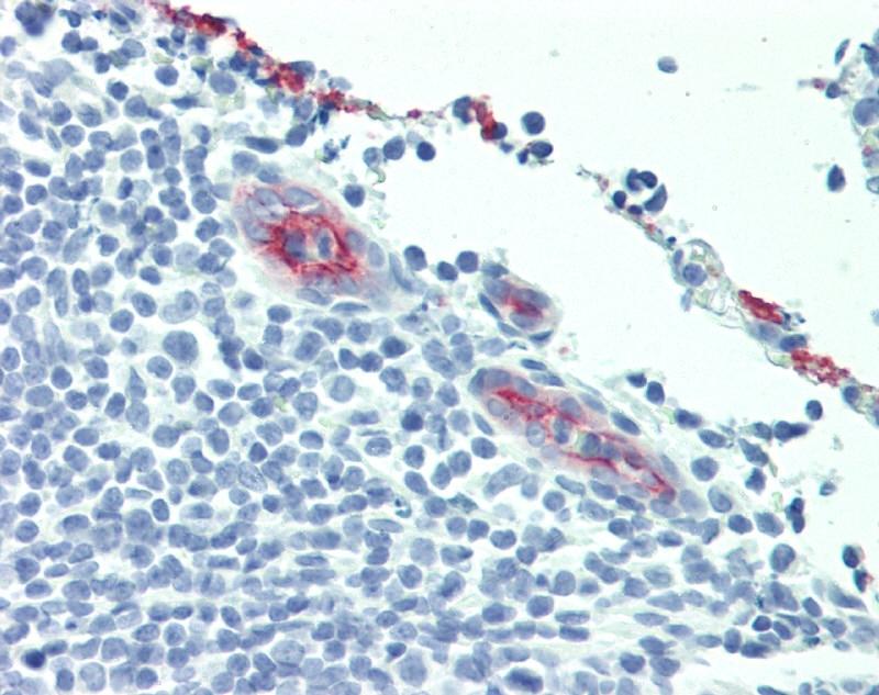 Anti Human CD62P Antibody, clone AK-6 thumbnail image 6