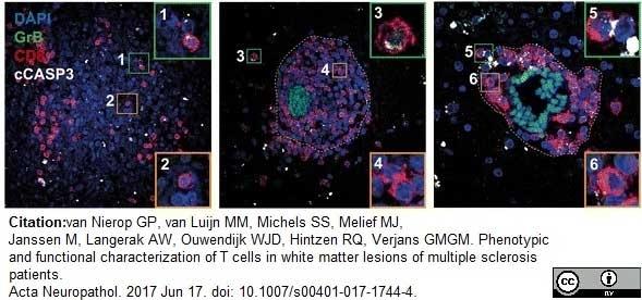Anti Human CD8 Antibody, clone YTC182.20 thumbnail image 5