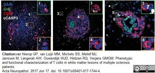 Anti Human CD8 Antibody, clone YTC182.20 thumbnail image 7