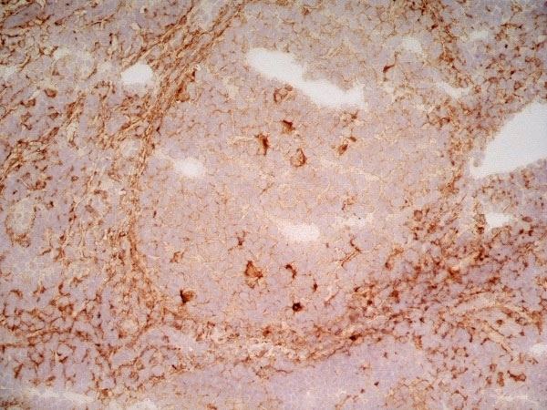 Anti Human CD91 Antibody, clone A2Mr alpha-2 thumbnail image 3