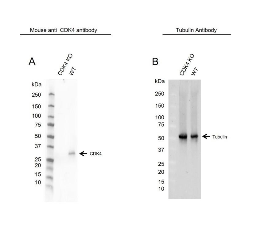 Anti CDK4 Antibody, clone 1529CT850.162.73 (PrecisionAb Monoclonal Antibody) thumbnail image 2