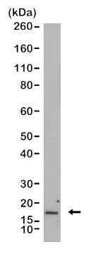 Anti CDKN2A Antibody, clone RM409 thumbnail image 1
