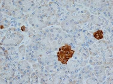 Anti Human Chromogranin A Antibody, clone LK2H10 gallery image 1