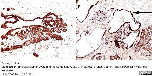 Anti Human Chymotrypsin Antibody, clone CHYMO10-104.5 (4E1) thumbnail image 2