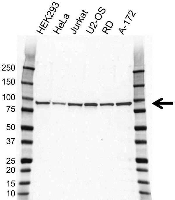 Anti CIP2A Antibody, clone OTI1C11 (PrecisionAb Monoclonal Antibody) gallery image 1