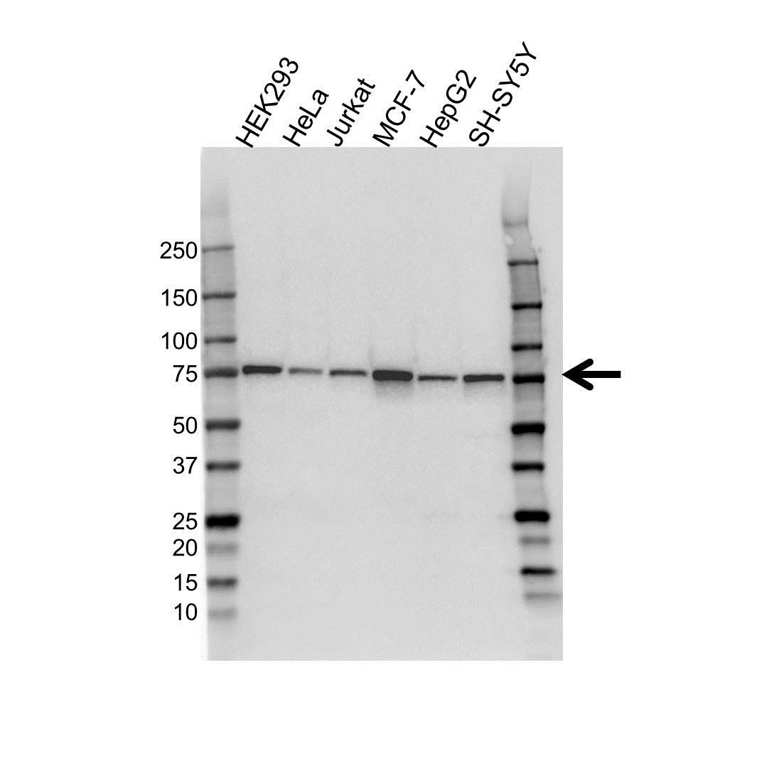 Anti Coilin Antibody (PrecisionAb™ Monoclonal Antibody) gallery image 1