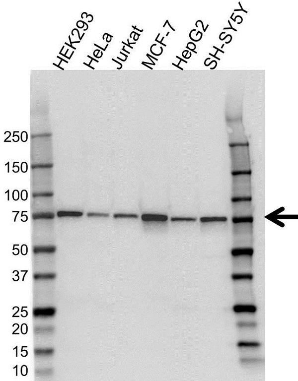 Anti Coilin Antibody (PrecisionAb Monoclonal Antibody) gallery image 1