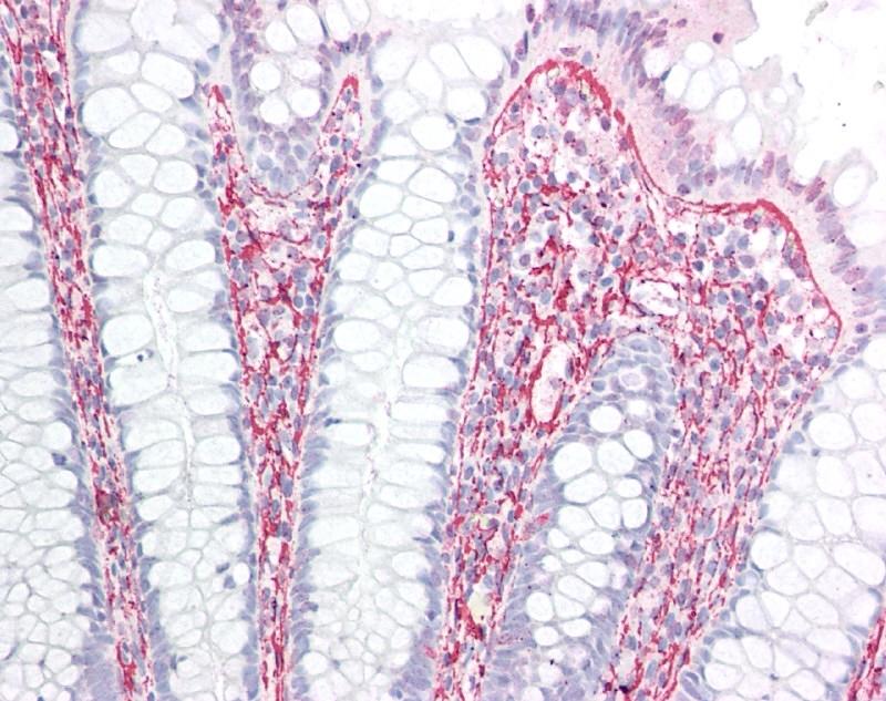 Anti Human Collagen II Antibody, clone COLL-II thumbnail image 1
