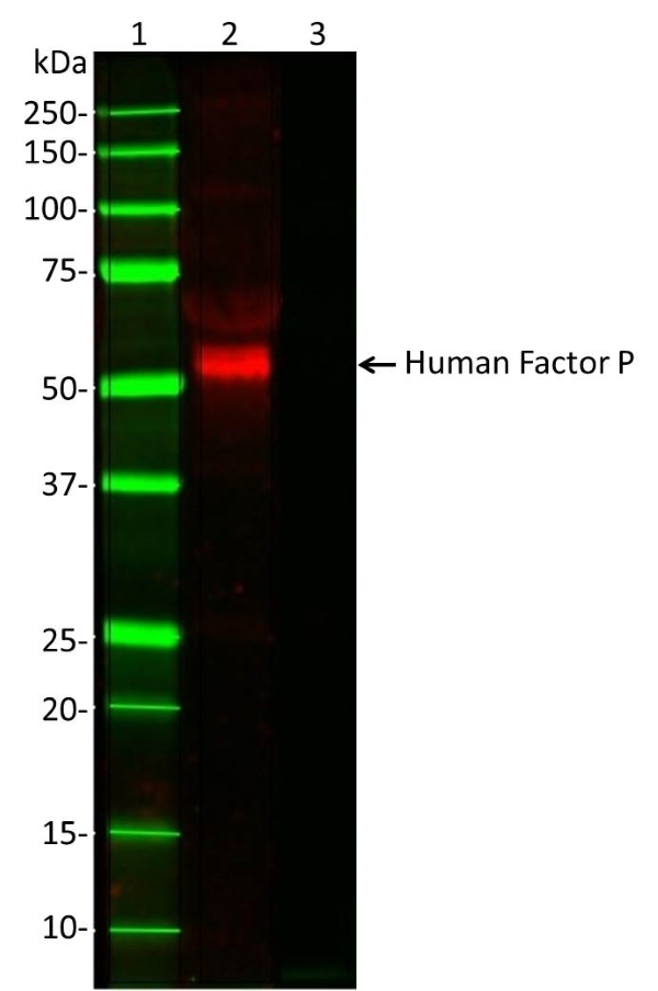 Anti Human Factor P Antibody, clone 10-18 gallery image 1