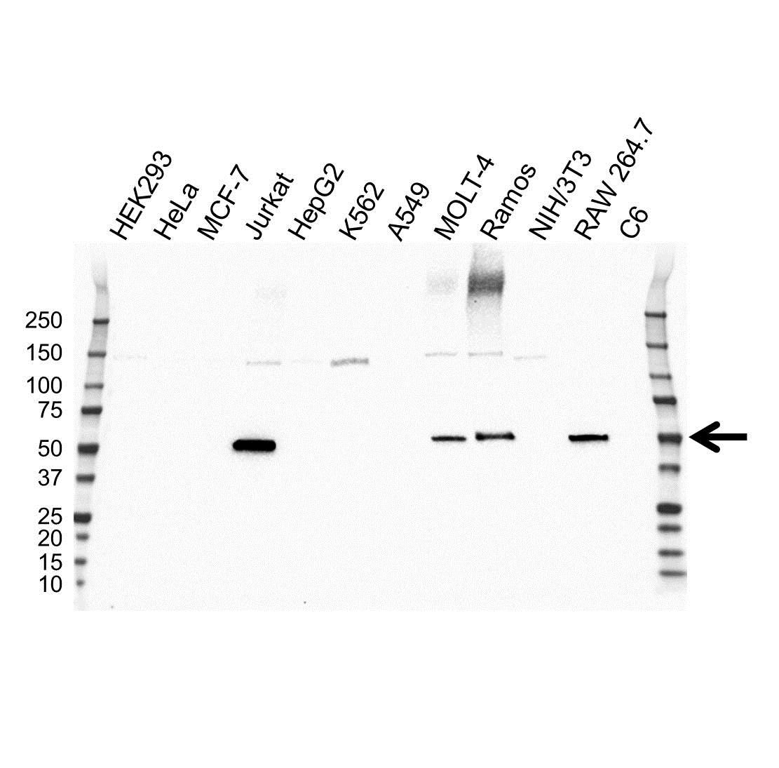 Anti Coro1A Antibody, clone OTI1A5 (PrecisionAb™ Monoclonal Antibody) gallery image 1