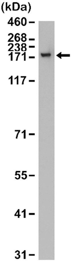 Anti CPS1 Antibody, clone RM395 thumbnail image 1