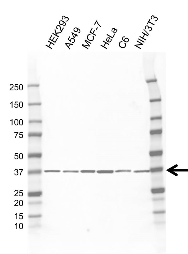 Anti CTGF Antibody, clone AB01/1E5 (PrecisionAb Monoclonal Antibody) gallery image 1