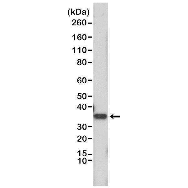 Anti Cyclin D1 Antibody, clone RM241 thumbnail image 1