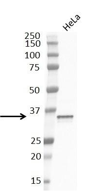 Anti Cyclin D1 Antibody, clone RM241 thumbnail image 2