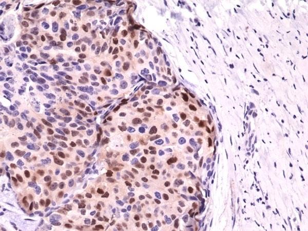 Anti Cyclin D1 Antibody, clone RM241 thumbnail image 3